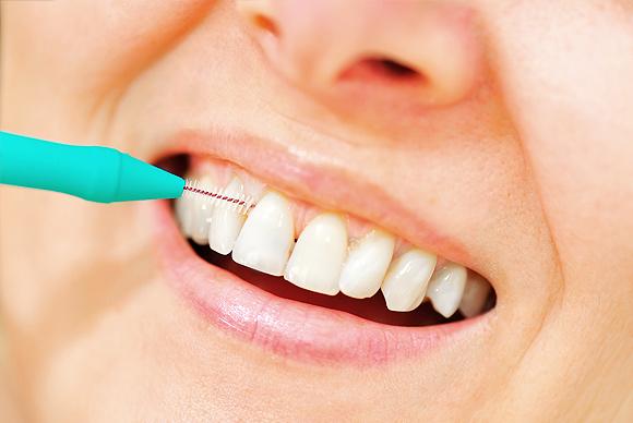 Dentistas Vitoria-Gasteiz calle Dato
