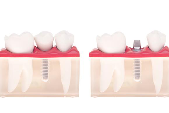 Clínica Dental Roberto Fernández Vitoria-Gasteiz